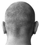 Hair Loss Baldness